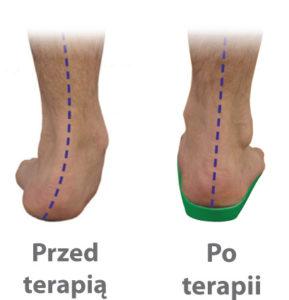 Skuteczność kuracji wkładakmi ortopedycznymi ICB